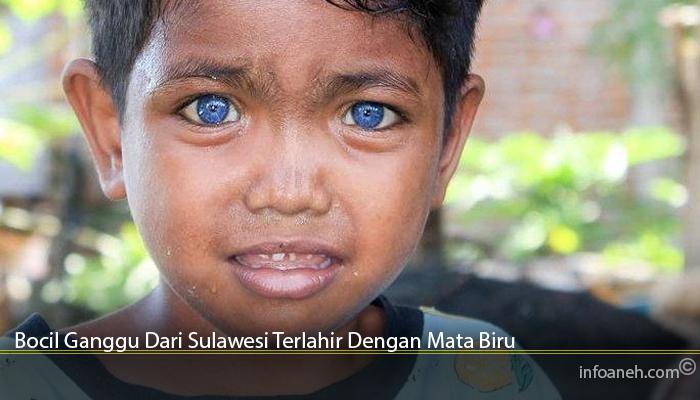 Bocil Ganggu Dari Sulawesi Terlahir Dengan Mata Biru